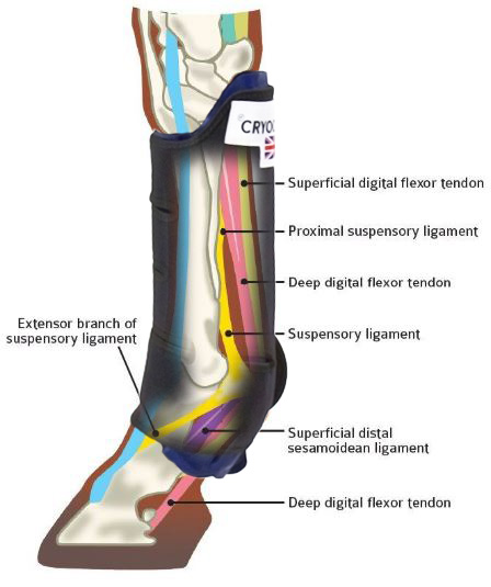 Cryochap with tendons